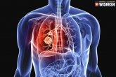 home remedies, home remedies, home remedies to treat lung cancer, Home remedies