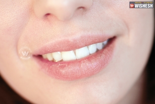 5 remedies for dry Lips